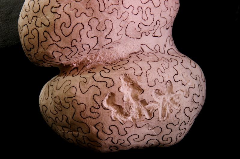 nut brain